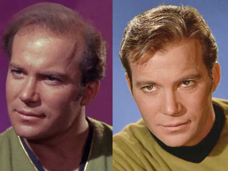 Celebrity Toupee: These Male Stars Rocked It, So Why Don't You?
