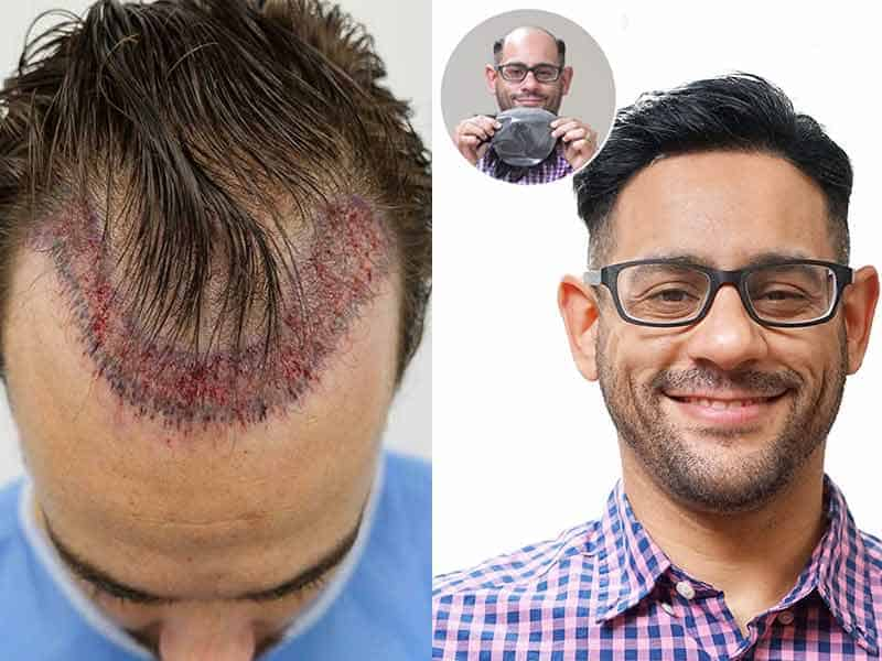Signs Of Balding - Pay Attention To These Signals!