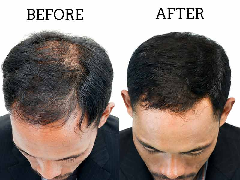 The Ins And Outs Of PRP For Hair Loss And What You Should Do Today